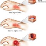 جراحی صدمات سوختگی