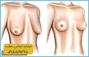 breast-lift1