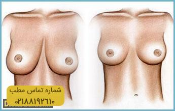 breast-reduction1
