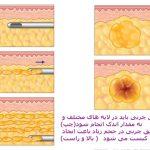 بزرگ کردن پستان با تزریق چربی به سینه