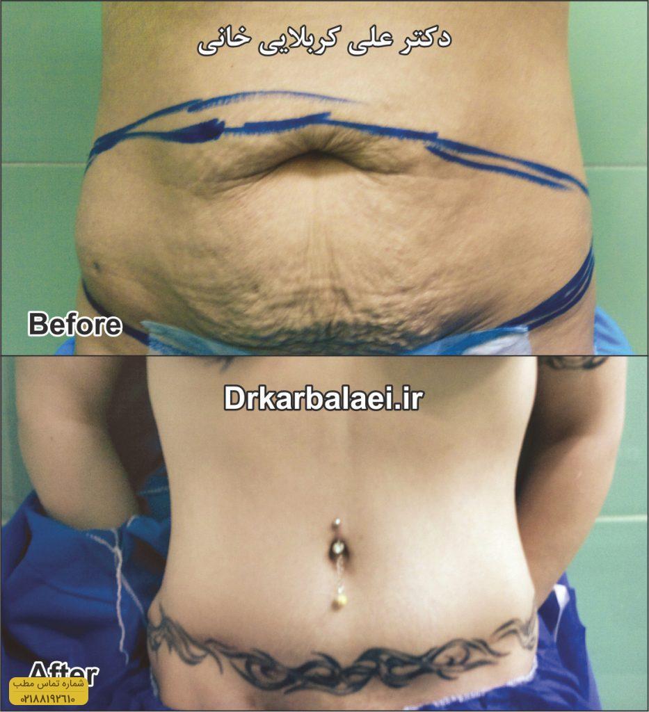 جراحی-شکم-۱-Copy
