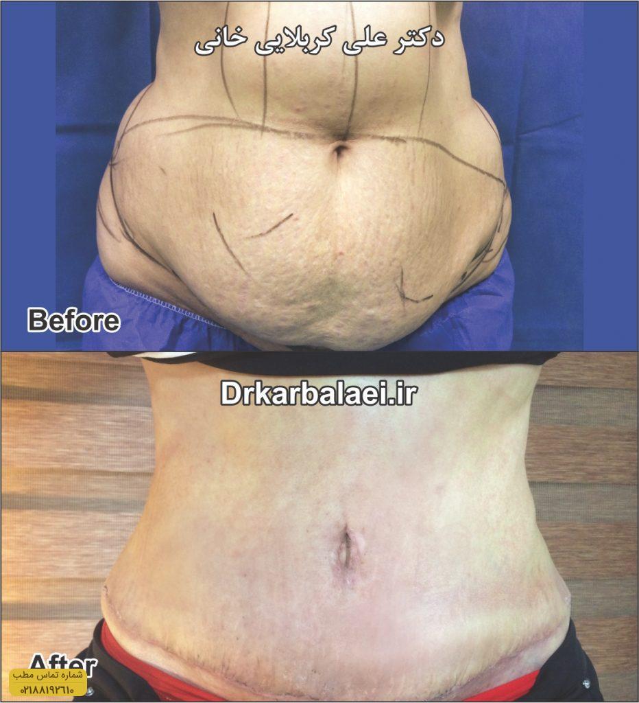 جراحی-شکم-۳-Copy