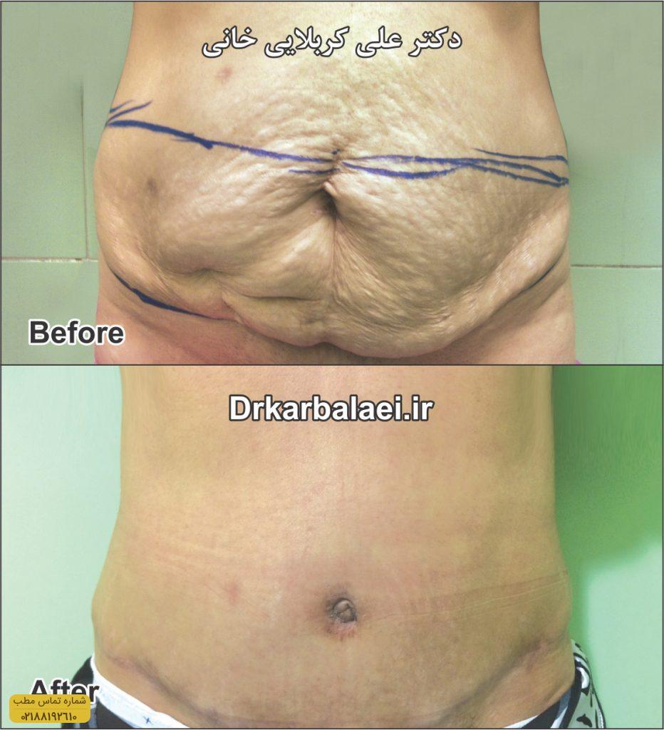 جراحی-شکم-۴-Copy