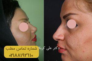 گالـری جراحی های بینی - دکتر علی کربالی