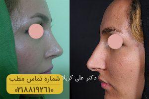جراحی بینی بینی - دکتر علی کربالی