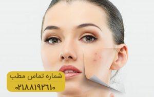 چگونه لکه های پوستی را درمان کنیم؟