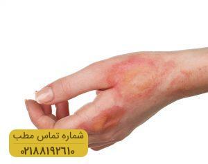 راه های درمان سوختگی های درجه اول در خانه