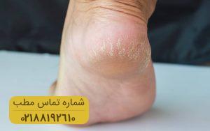 راهکارهای موثر برای درمان ترک های پاشنه پا