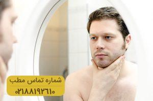 ریزش مو مرتبط با فصل