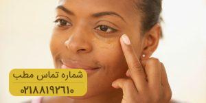 رفع کبودی و تیرگی اطراف چشم با محصولات خانگی