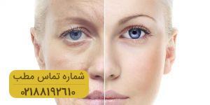 راهکارهای موثر برای جلوگیری از علائم پیری