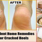 ۳ راهکار اصلی برای رفع خشکی پوست پا