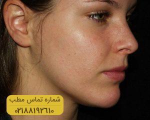 مراقبت از پوست با روش های موثر