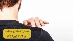 بهترین روش ها برای درمان خانگی شوره سر