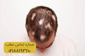 اطلاعاتی در خصوص ریزش مو سکه ای