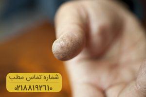 تمام آنچه که باید در خصوص درمان ترک های پوستی بدانید