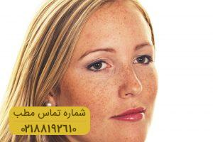 درمان ملاسما در زنان و مردان