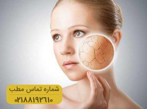 علت خشکی پوست چیست؟