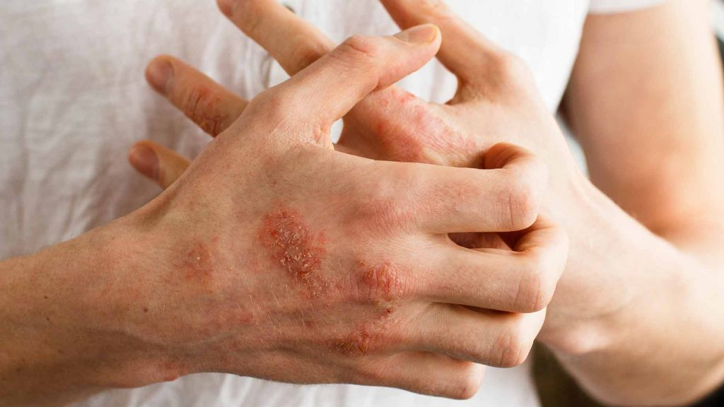 قارچ دست و پا (درمان خانگی و سنتی)
