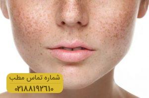 تشخیص سلامتی بدن از تظاهرات پوستی