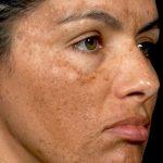 ۷ دلیل تغییر رنگ ناگهانی پوست