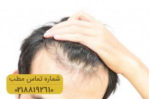 پس از پیوند مو چه اتفاقاتی می افتد؟