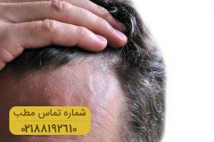 ۱۰ کلید طلایی برای جلوگیری از ریزش مو و حفظ سلامتی آنها